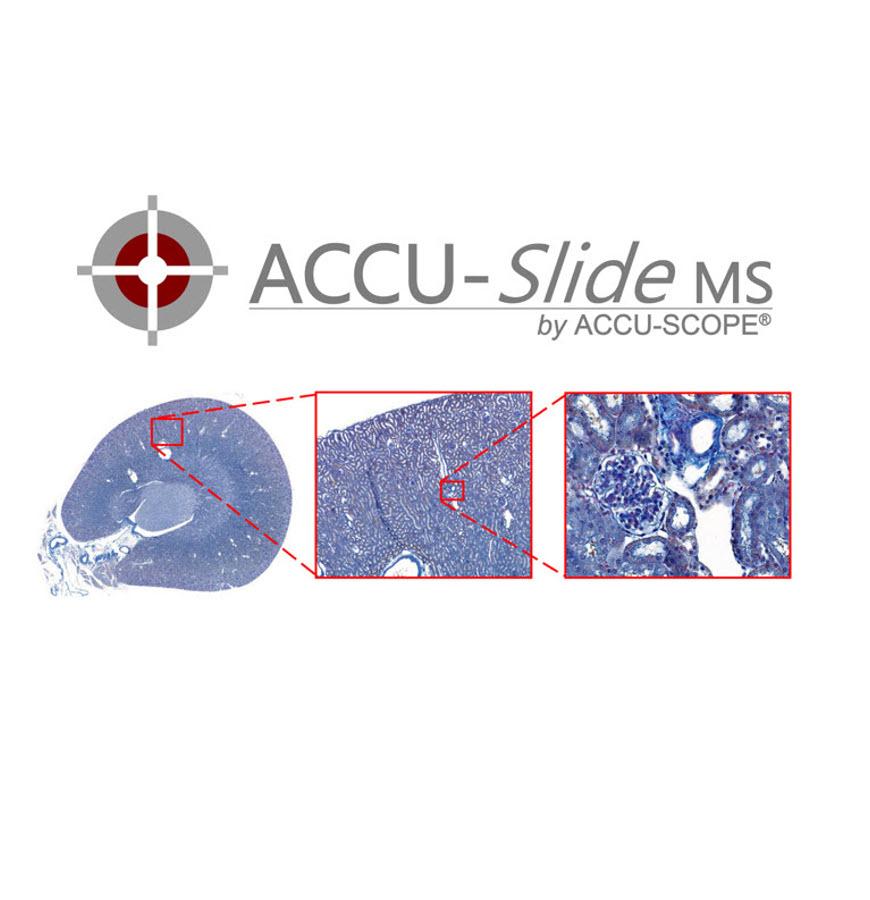 ACCU-Slide